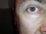 Laserowa korekcja wad wzroku okazuje się być coraz częściej proponowana